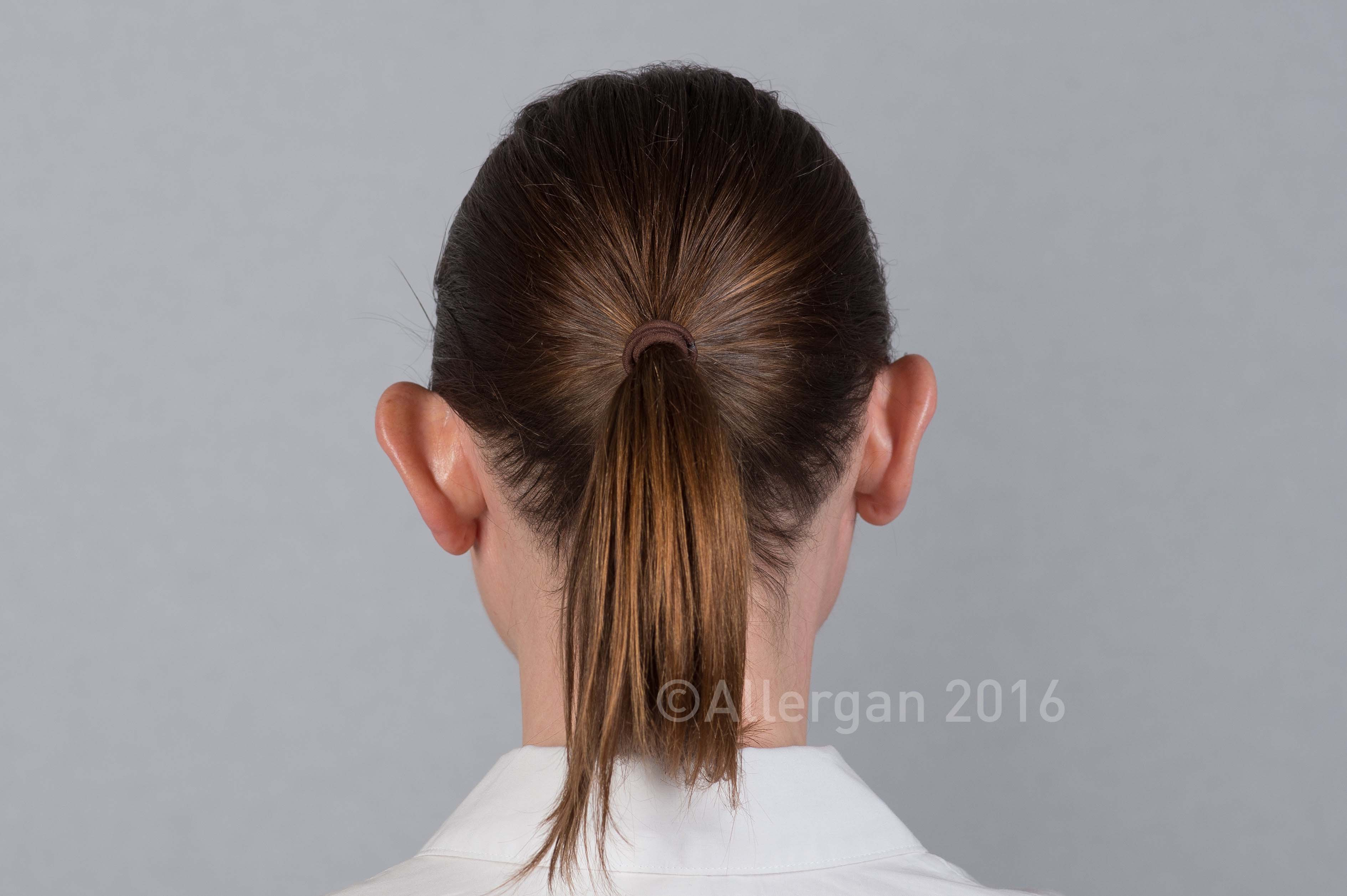 ear-fold